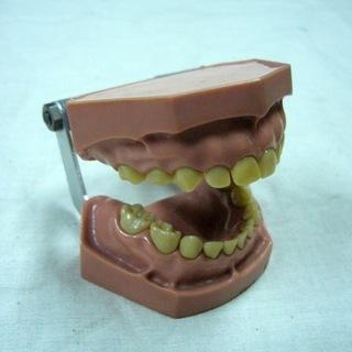 歯の模型(その2)