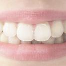 光のチカラで白い歯に戻すホワイトバランス!