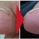 足の救急所ー巻き爪、タコ、ウオノメ、角質