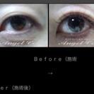 これからの紫外線対策 瞳のケア ネトラバスティ
