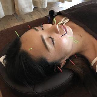 シミ、シワ、たるみ対策に美容鍼灸
