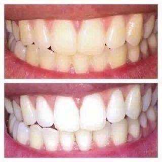 歯を白くしたい人にオススメ❤️