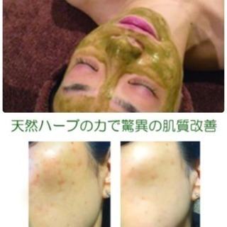 《美肌再生プログラム6回コース》剥けない❗️痛くない❗️当日お化...