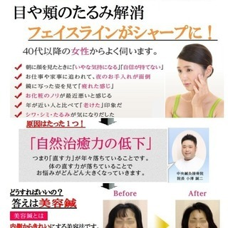 美容鍼1コイン体験会 !500円で美容鍼を体験できるチャンスです。...