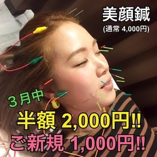 美顔鍼半額!ご新規の方は半額の半額、1,000円!