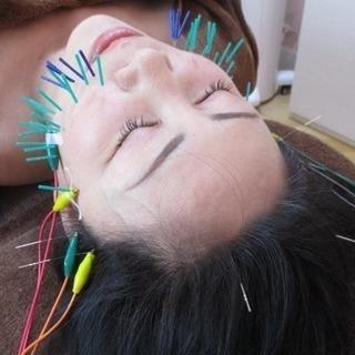 愛知県岡崎市で美容鍼をお探しならハリークィーンへ♡