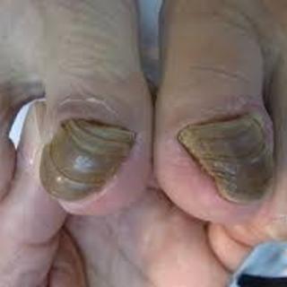 足の爪が切れなくてお困りではありませんか