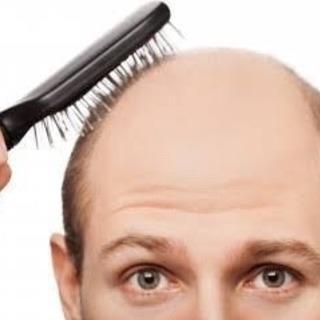 育毛対策についてのアドバイス
