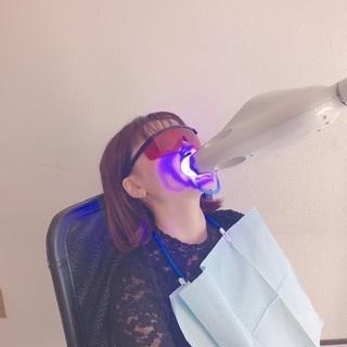 歯のセルフホワイトニング💛初回2500円‼️も