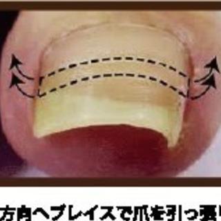 出張  痛くない巻き爪矯正    通常4,500円が→ お試し価...