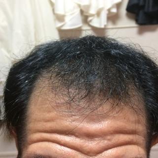 女性も男性も気になる髪の毛の量を少しずつ自然にバレずに増毛します。
