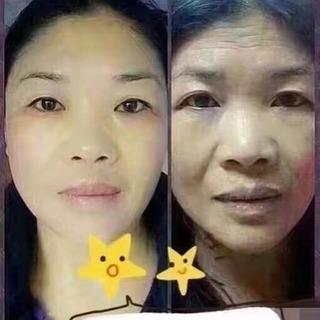 顔面の細胞を活性化し