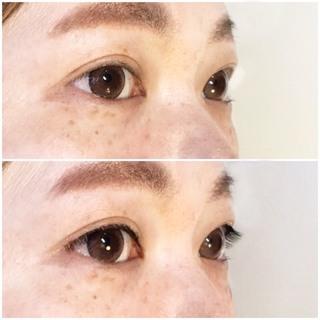 まつげのない方のための人工皮膚つきまつげ『レスま』サービスSTART!! − 東京都