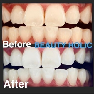 都内で1回24000円のメニューをご用意😍真っ白な歯へ✨劇的変化...