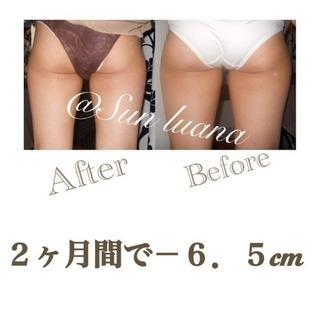 【痩身⚠️結果重視】1度の施術で最大-2cm‼️筋膜⚡️セルライ...