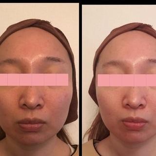 小顔矯正+肌ケアモニター