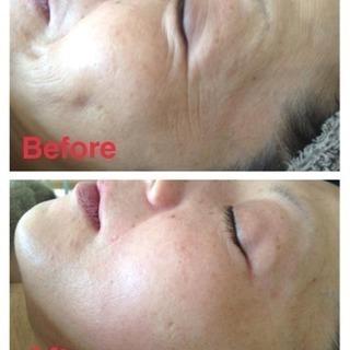 6月・7月小顔になる顔筋マッサージ講習¥20,000~ - 美容健康