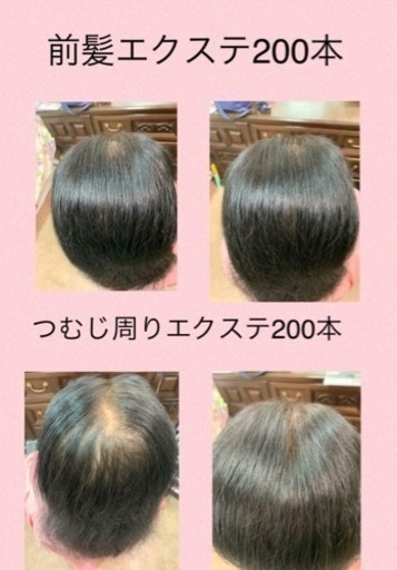 薄毛 女性 前髪