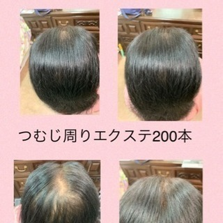 女性の薄毛に増毛エクステお試し200本5000円!
