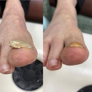 足の爪、大丈夫ですか?
