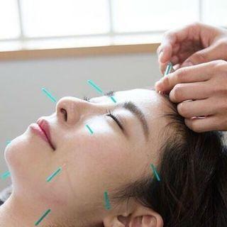 初めての方にも安心の美容鍼灸