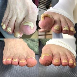 足爪の肥厚(厚くなってしまう)増えてます⁈