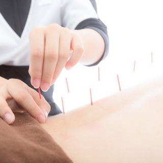 訪問鍼灸無料体験