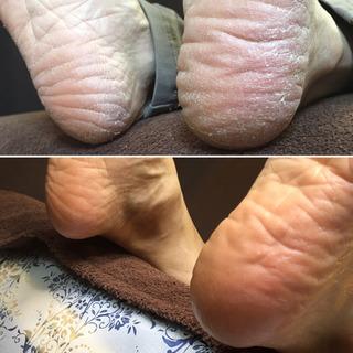 足の胼胝・魚の目・角質 トラブル ありませんか?