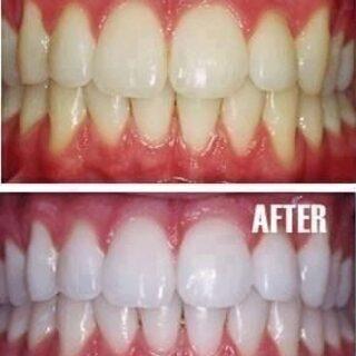 世界初!歯ブラシホワイトニング【イルミナルホワイト歯ブラシセット】 - 売ります・あげます