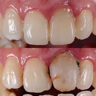 なるだけ痛くない歯医者さん佐賀ん歯科です。佐大近く南バイパス沿い...