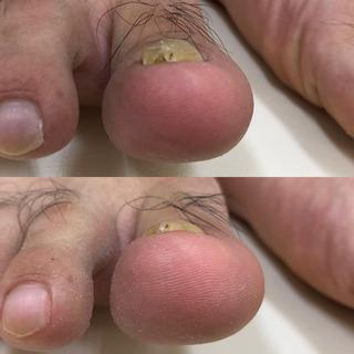 足に合わない靴は、爪が厚くなるかも?
