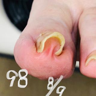 巻き爪、角質ケア、自爪ケアの施術例掲示中‼️