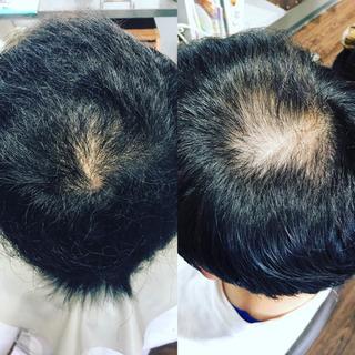 関西で実績の、ある育毛メニューを、体験しませんか?