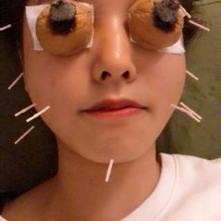 よもぎ蒸し♨️と美容鍼灸🥰キャンペーン