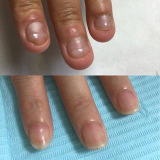 深爪、噛爪、育爪専門サロン