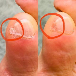 引っかかると痛い足の爪、大丈夫?