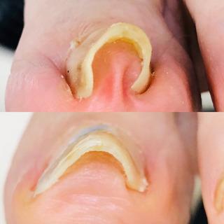 痛い巻爪‼️出張施術します。