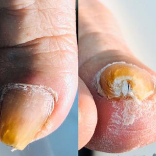 痛い❗️巻爪の矯正は、早めが肝心‼️