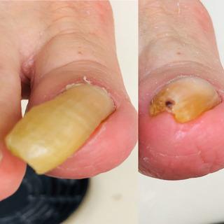 足爪を放って置くと痛くなる⁉️肥厚爪