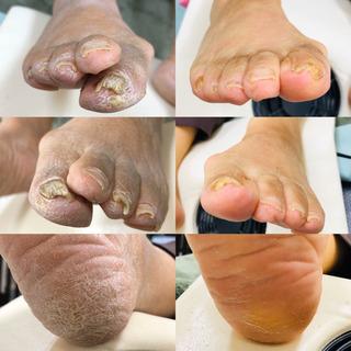 足、綺麗になりました‼️角質ケア、自爪ケア。