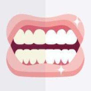 歯のセルフホワイトニング。初回¥4,000~