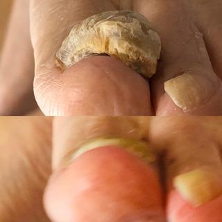 厚くなった足爪、スッキリしました‼️
