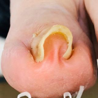 巻爪の辛い痛み‼️改善報告です。