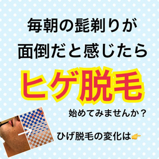 ☆男性限定☆  ひげ脱毛 |名古屋市昭和区