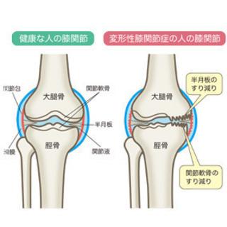 〜変形性膝関節症について〜