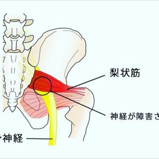 〜坐骨神経痛(梨状筋症候群)について