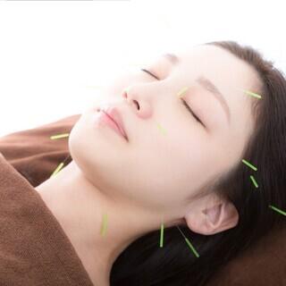 女性鍼灸師による美容鍼【直方市の頓野鍼灸整骨院】