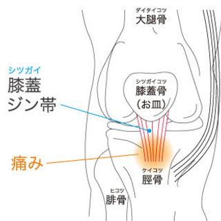 〜ジャンパー膝について〜