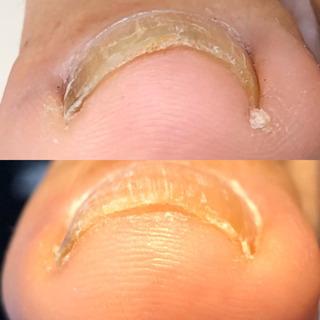 痛い巻爪、半年経っても開いてました‼️