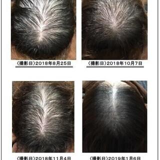 沖縄で薄毛・抜け毛・AGA・発毛・薄毛治療のことならお任せ…